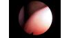 ses-tellerinin-fiberoptik-endoskopla-degerlendirilmesi-dr-erkan-tarhan